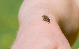 Что делать если пчела укусила в палец или руку