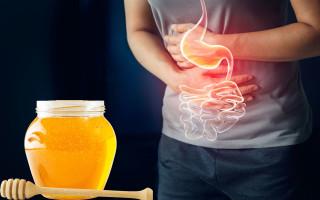 Использование меда при гастрите желудка